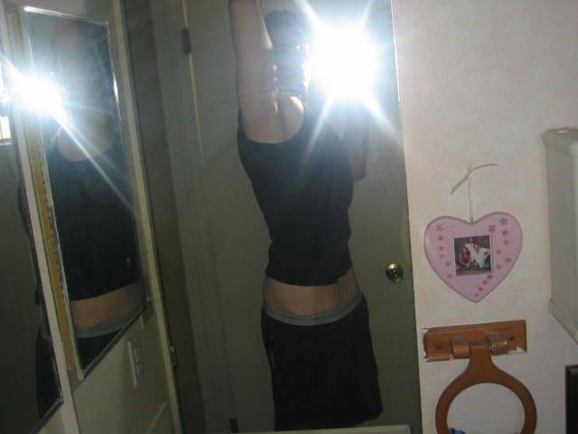 Толстяк похудел на 186 килограмм! Шокирующие фото